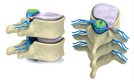 Spine anatomy library