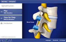Spine medical animations